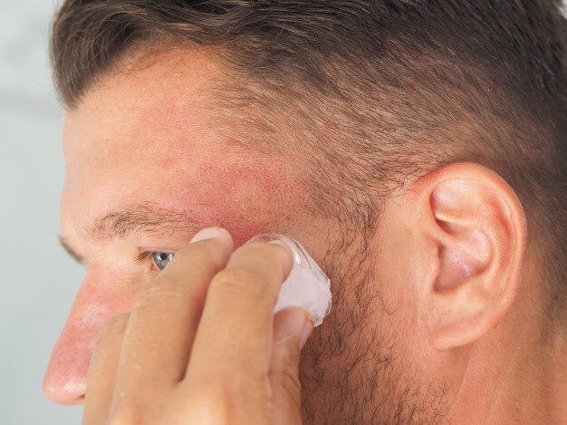 Alergi kulit kepala