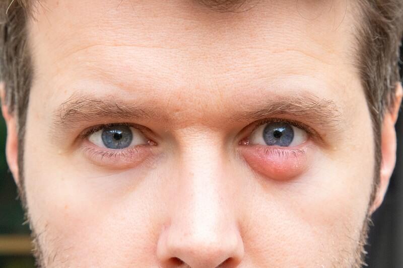Iritasi mata akibat pewarna rambut