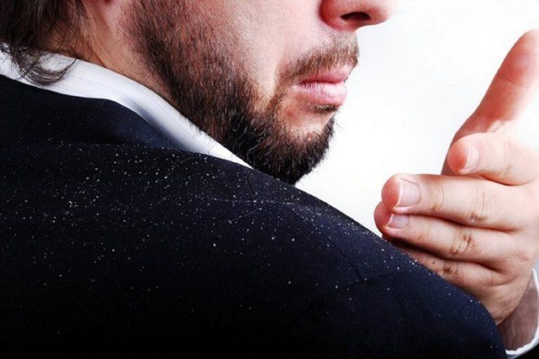 Cara Mengatasi Ketombe Pada Pria