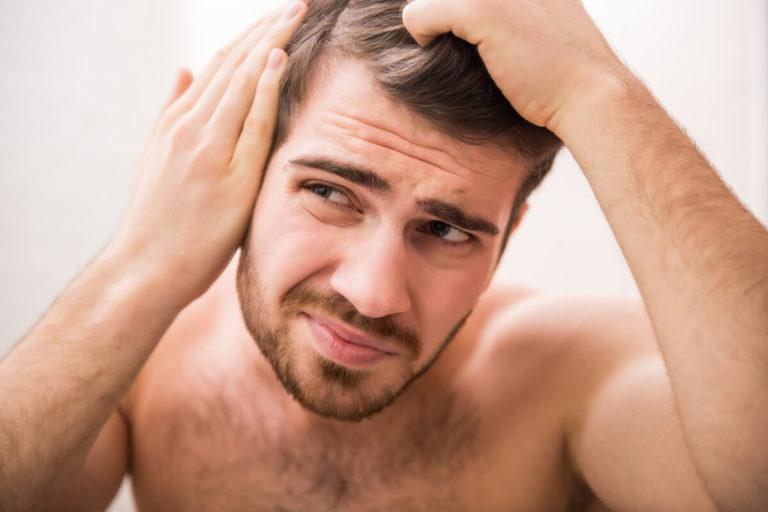 Cara Mengatasi Rambut Rontok Pria