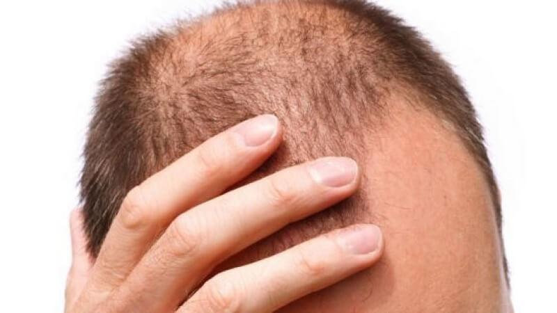 Penyebab Rambut Rontok Botak pada Pria
