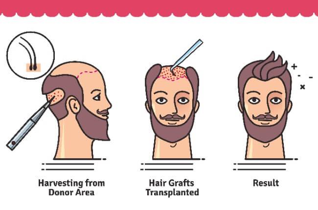 Transplantasi rambut pada pria merupakan solusi ampuh untuk mengembalikan rambut yang botak