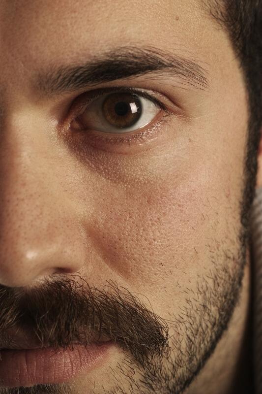 Cara mengilangkan kantung mata secara alami