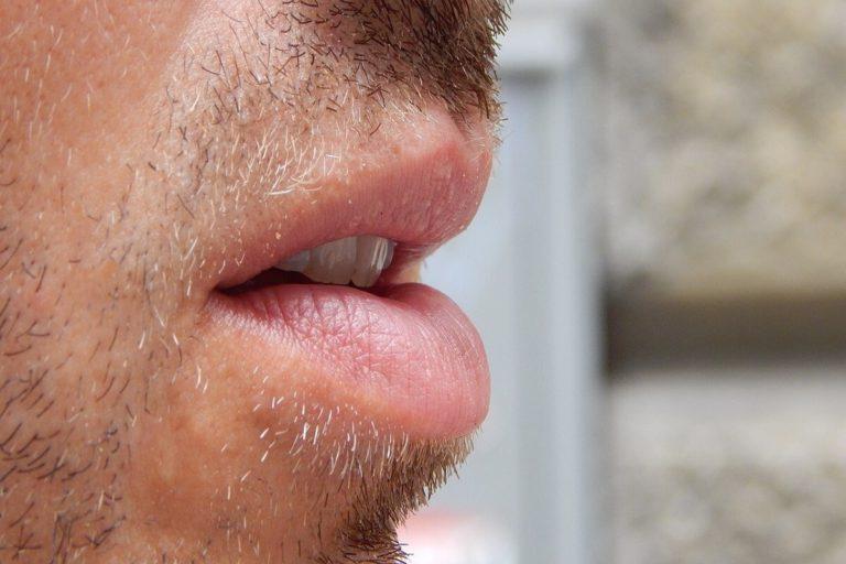 Menjaga Kesehatan Bibir Pecah dan Kering